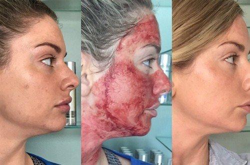 Dermaroller pentru tratarea cicatricilor acneice